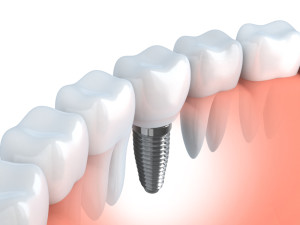 Dental implants from dentists in Burleson, Drs Oza and Kohli, replace teeth beautifully and securely. Who is a candidate for these prosthetic wonders?