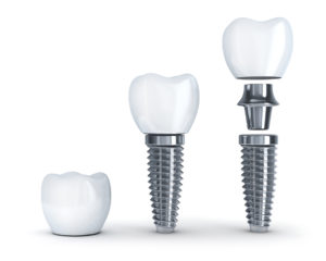 Dental implants in Burleson make the jaw bone strong.