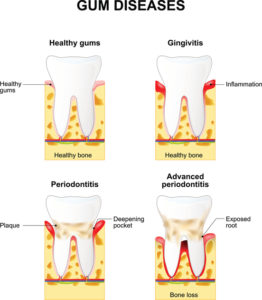 Your dentist in Burleson provides gum disease treatment.