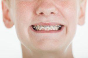 A boy with braces.