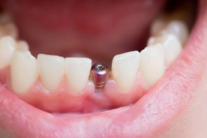 A person with a dental implant.